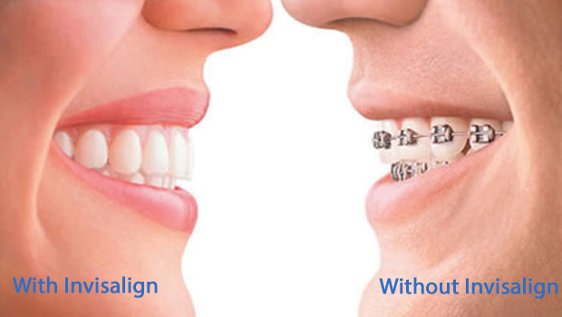 Invisalign in Mid-City